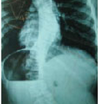 Spine Surgery Treatment