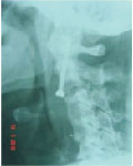 Spine Surgery in Hyderabad